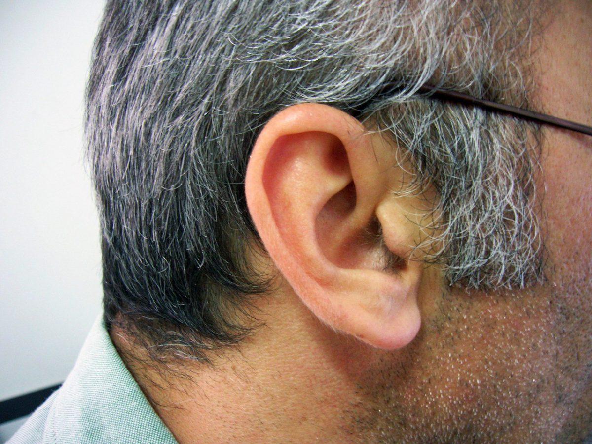 Korekta kształtu uszu
